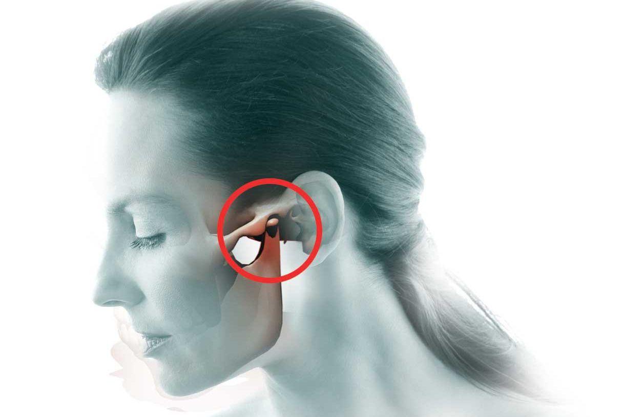 Остеохондроз С Корешковым Синдромом Лечение