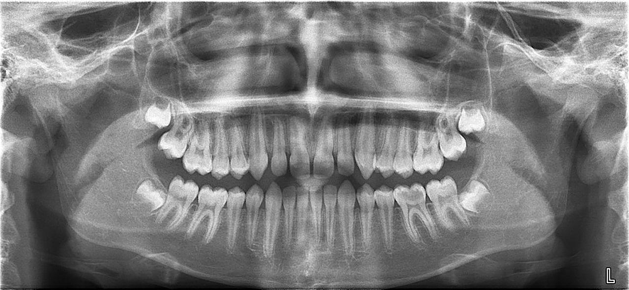 техноэласт панорамный снимок зубов в москве недорого мешок